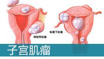子宫肌瘤的治疗方法_大连妇科医院
