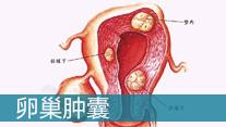 卵巢囊肿的原因_大连妇科医院
